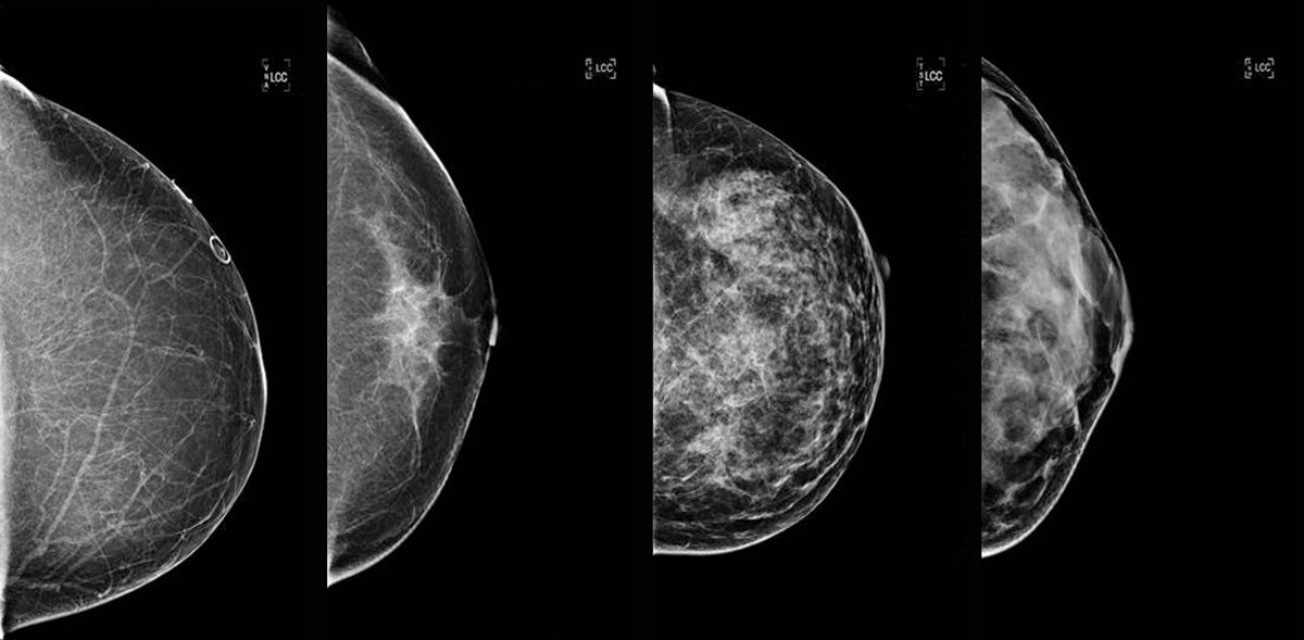 3d mammogram technology means earlier breast cancer detection fewer